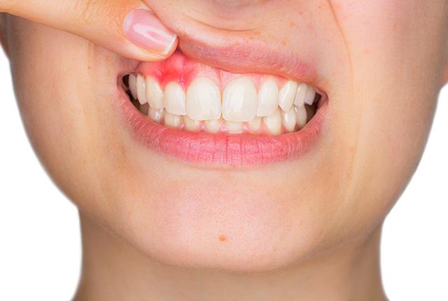 根面被覆術(歯周形成外科)